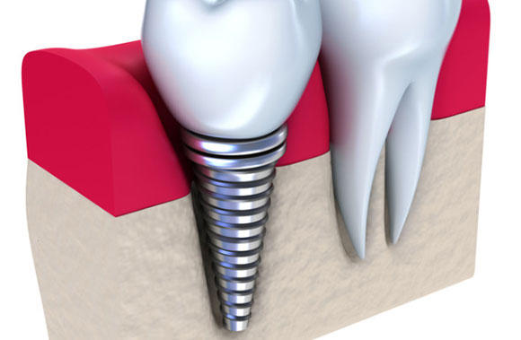 Implant Supported Crowns & Bridges